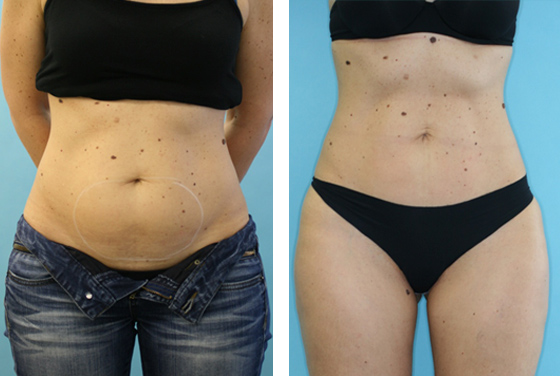 Liposuction Before-After preview