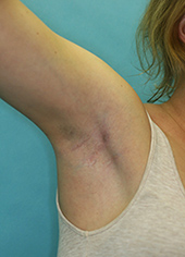Image showing the small, well-concealed scar in the armpit, once healing has occurred.