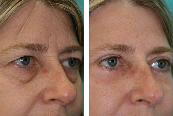 Eyelid operation Before-After preview