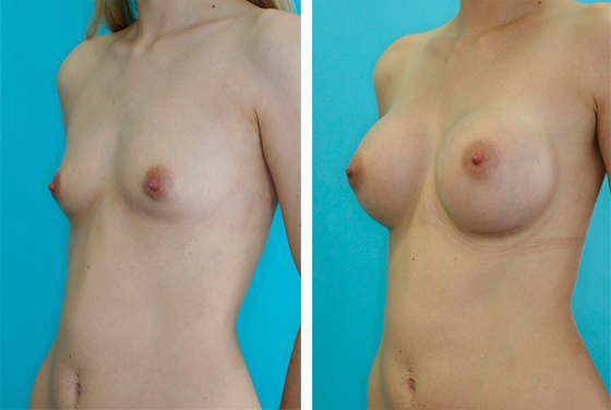 Breast augmentation - Before-After preview