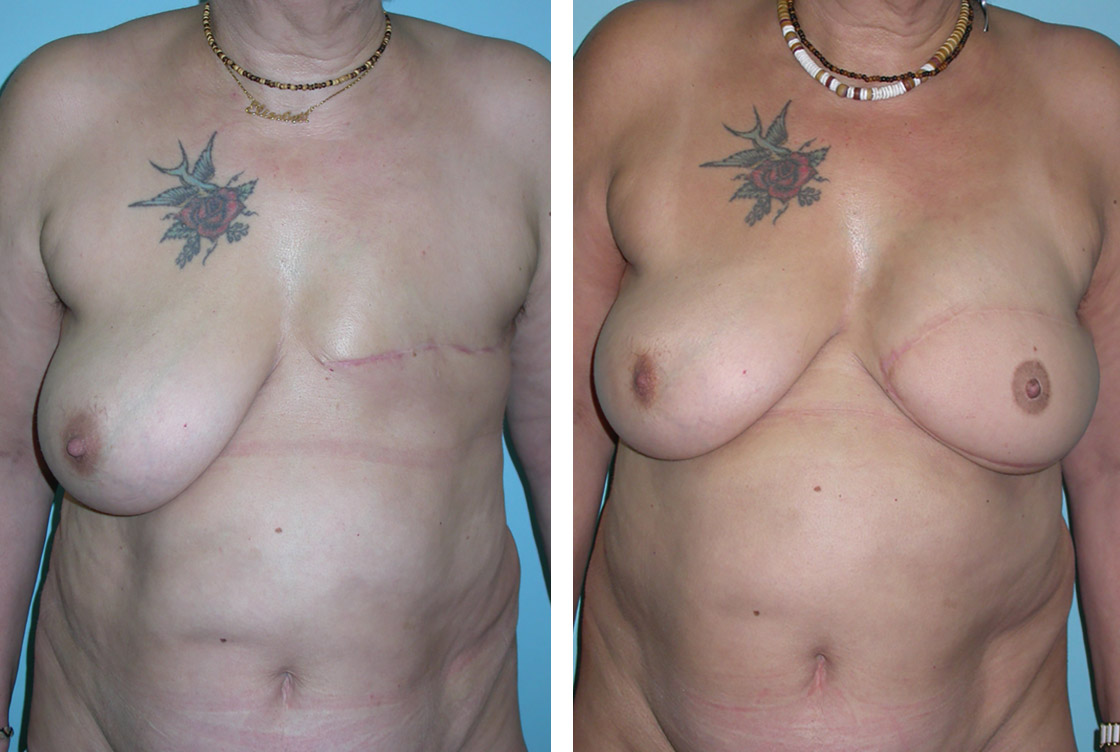 Breast reconstruction - Before-After preview