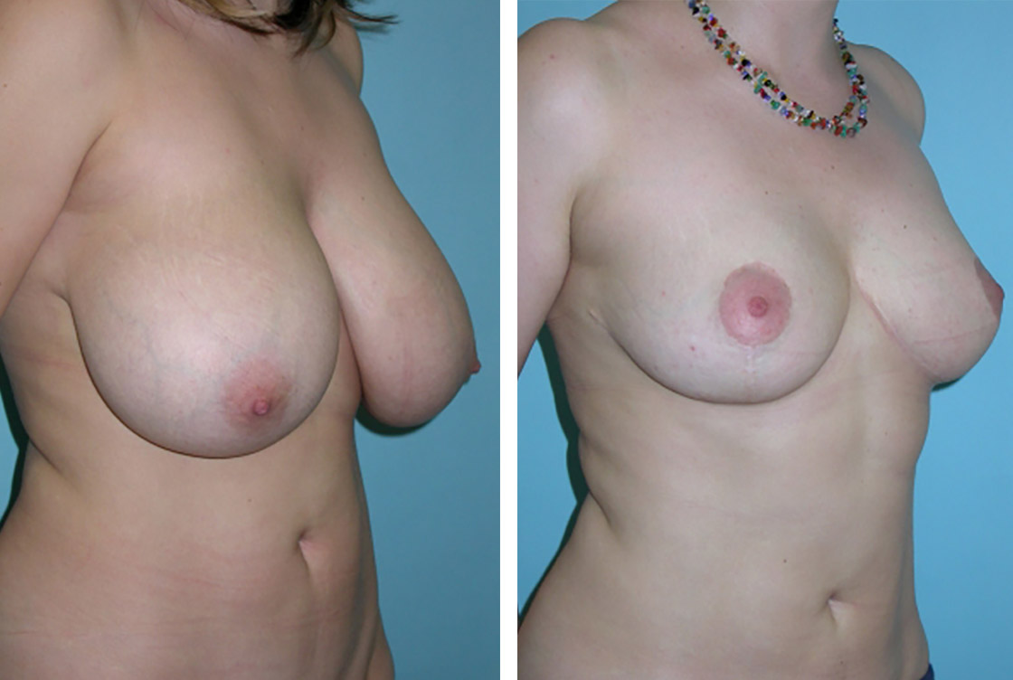 Breast reduction - Before-After preview