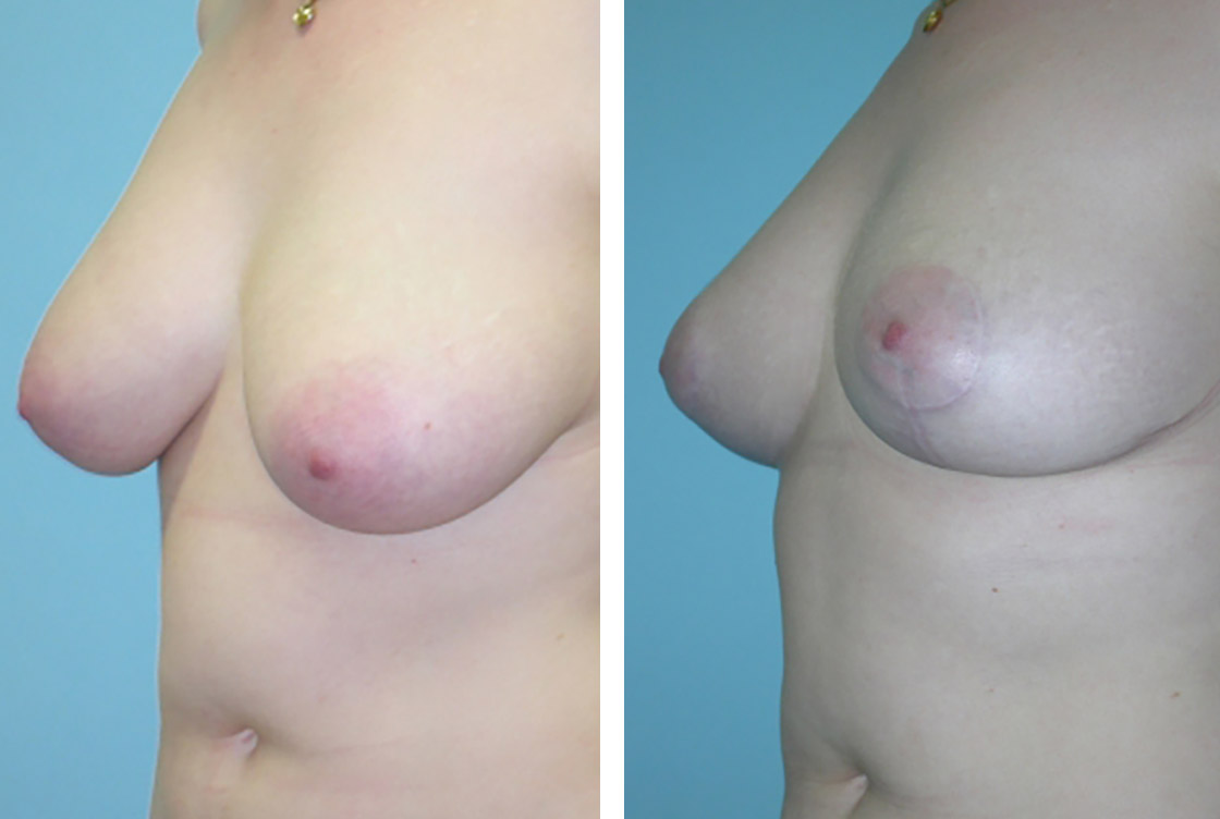 Breast reshaping - Before-After preview