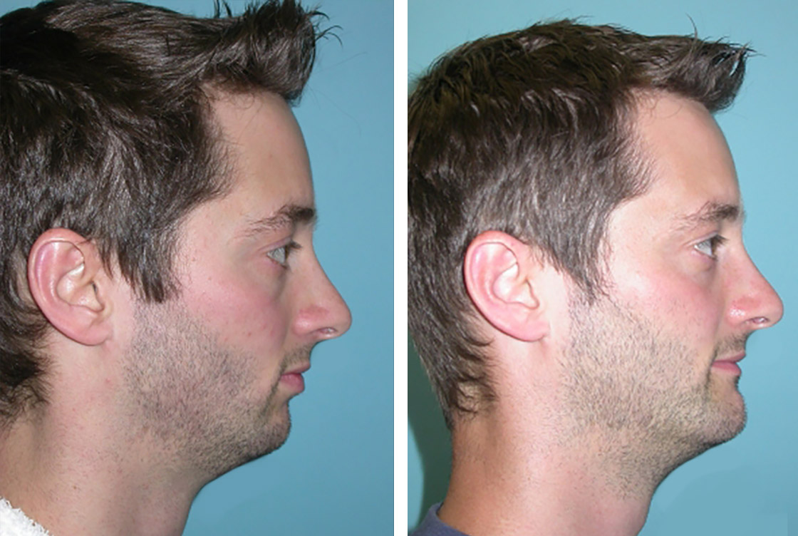 Chin corrective surgery - Before-After preview