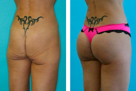 Gluteoplasty, BBL Before-After preview image