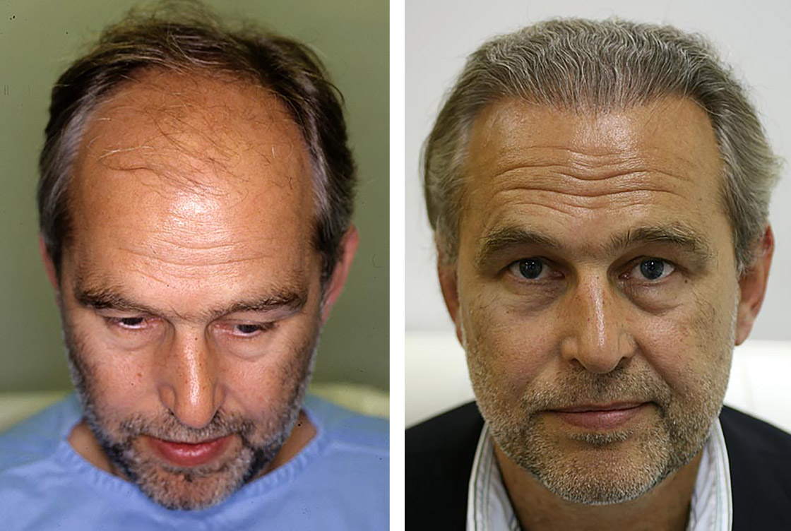 Hair transplants - Before-After preview