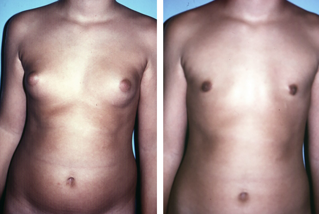 Male breast reduction - Before-After preview