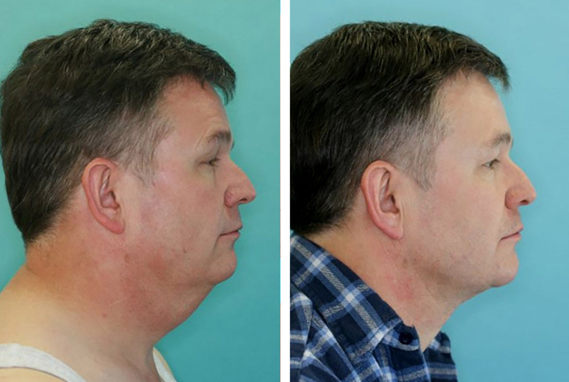 Necklift Before-After preview