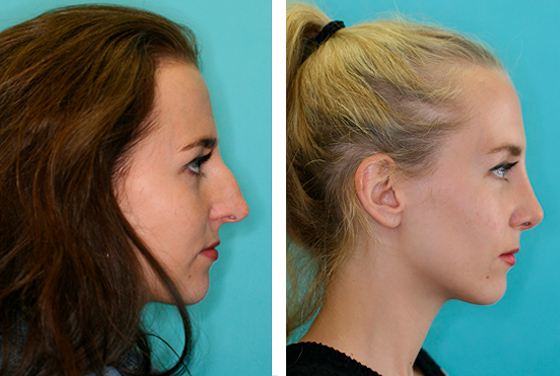 Rhinoplasty Before-After preview