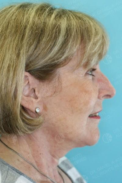 After Side Image